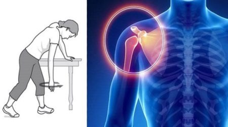 Fibromyalgia Shoulder Pain